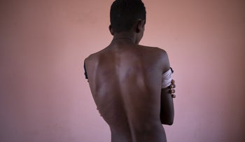 An 18-year-old Tigrayan student who fled the conflict in Ethiopia's Tigray, shows the wounds on his back from being beaten by Eritrean soldiers.