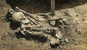 """Original excavation photograph of """"Tsukumo 24"""" - a man who had been attacked by a shark around 3,000 years ago"""