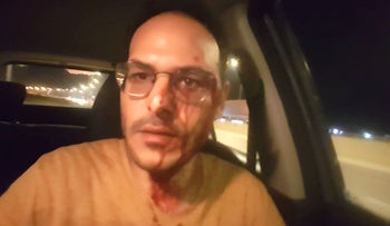 Avichai Marciano in his car after he was attacked.